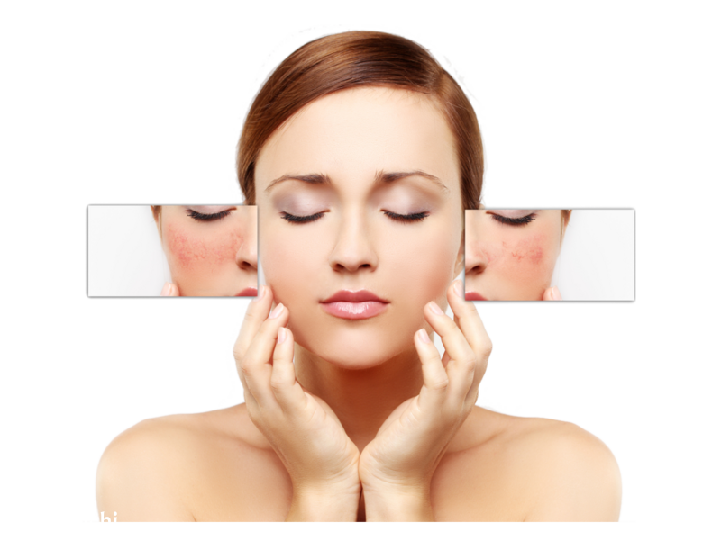 Skin Pigmentation Treatment Services in Hyderabad | Pelle Clinic - 1