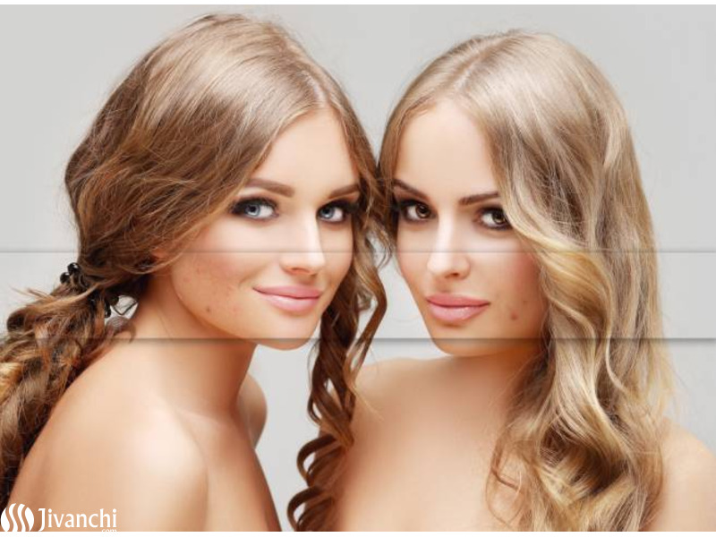 Skin Pigmentation Treatment Services in Hyderabad | Pelle Clinic - 2